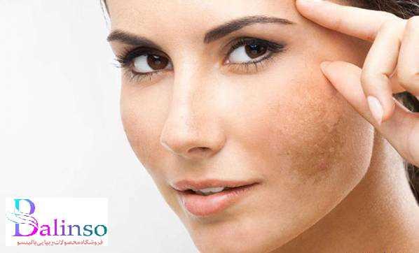 خواص و مزایا روغن خراطین برای پوست
